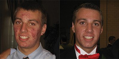 Custom Clear - Acne and Anti-Aging Skin Care - Before & After - Image 018