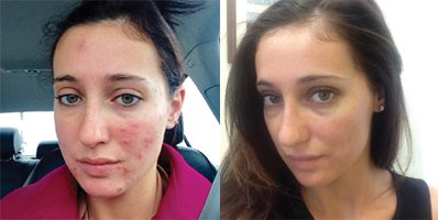 Custom Clear - Acne and Anti-Aging Skin Care - Before & After - Image 019