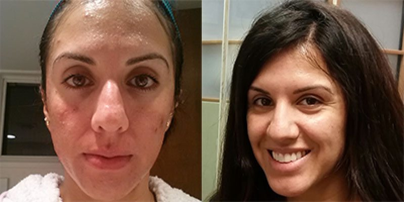Custom Clear - Acne and Anti-Aging Skin Care - Before & After - Image 021