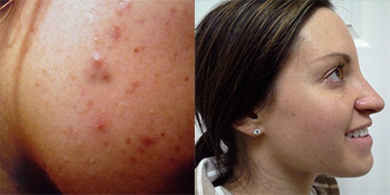 Custom Clear - Acne and Anti-Aging Skin Care - Before & After - Image 020