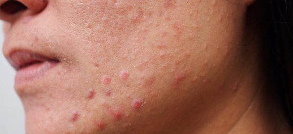 Custom Clear - Acne and Anti-Aging Skin Care - Banner - Image 020