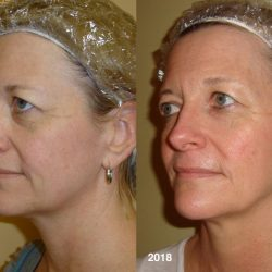 Custom Clear - Acne and Anti-Aging Skin Care - Banner - Image 051