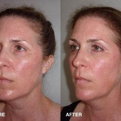 Custom Clear - Acne and Anti-Aging Skin Care - Banner - Image 052