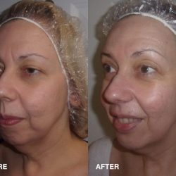 Custom Clear - Acne and Anti-Aging Skin Care - Banner - Image 053