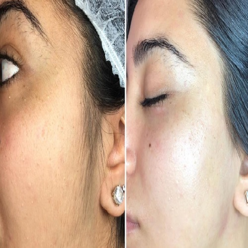 Custom Clear - Acne and Anti-Aging Skin Care - Banner - Image 044
